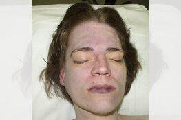 Wassenaar - Gezocht - Onbekende dode vrouw in duinen
